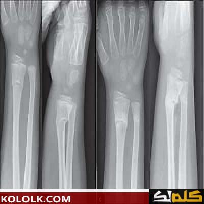 علامات و دلائل التئام العظام