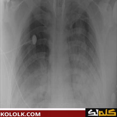 معلومات عن وذمة الرئة