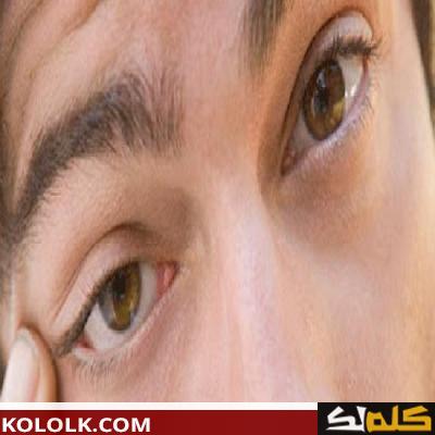 ما هى اسباب رفة العين اليسرى