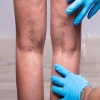 علاج و دواءات طبيعية لدوالي القدمين