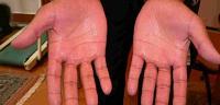 طريقة علاج و دواء تعرق اليدين