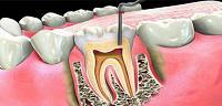 علاج و دواء التهاب عصب الأسنان