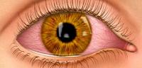 كيف تتم عملية الرؤية عند الإنسان