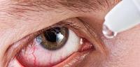 مشاكل وعيوب العين