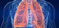 اعراض تليف الرئة